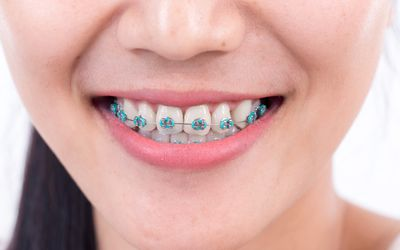 SOFT FOODS TO EAT WITH BRACES