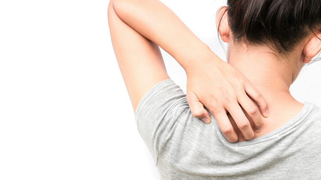 SKIN RASH DUE TO STRESS: SYMPTOMS, CAUSES AND TREATMENT