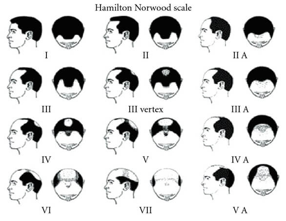 Hombres con pérdida de cabello Norwood Etapa 3 y superior