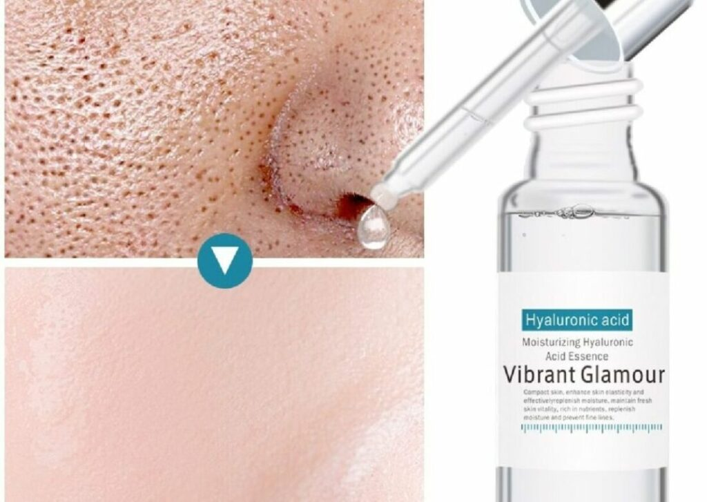 What exactly is Hyaluronic Acid